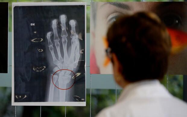 Esposizione Ospedale San Carlo contro violenze subite dalle donne